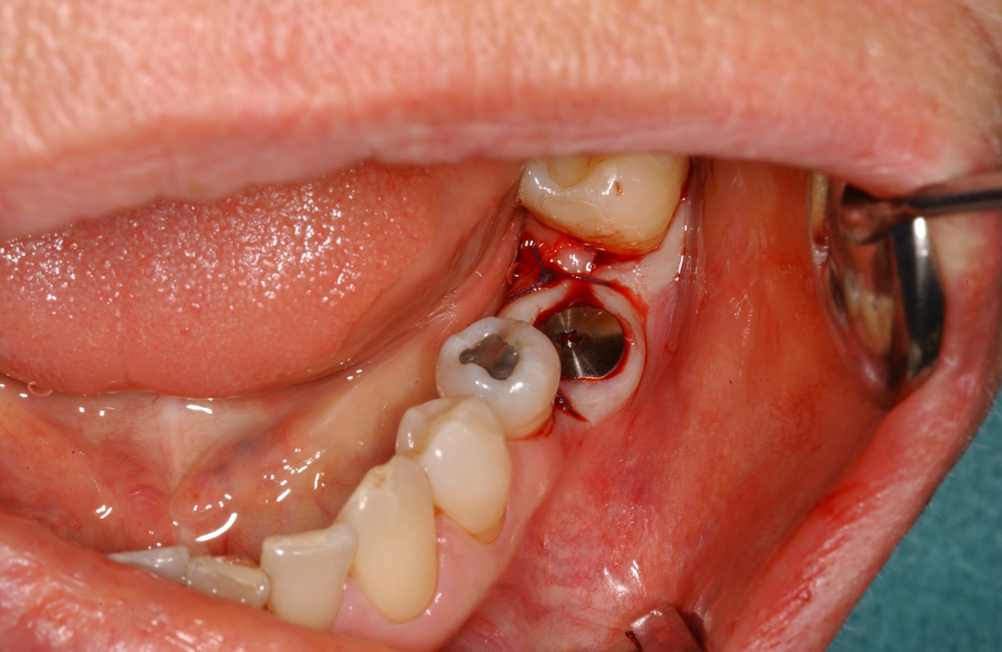 ORAL SURGERY AND IMPLANTOLOGY :: Dental office, Alda Žagar DMD